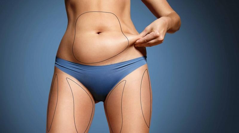 como perder massa gorda
